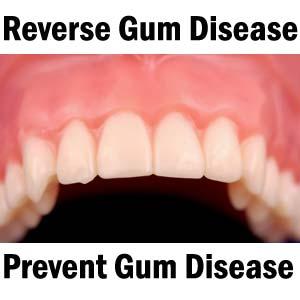 Reverse-Gum-Disease