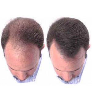 hair-growth-home-remedies