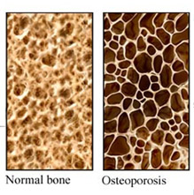 How To Prevent Osteoprosis
